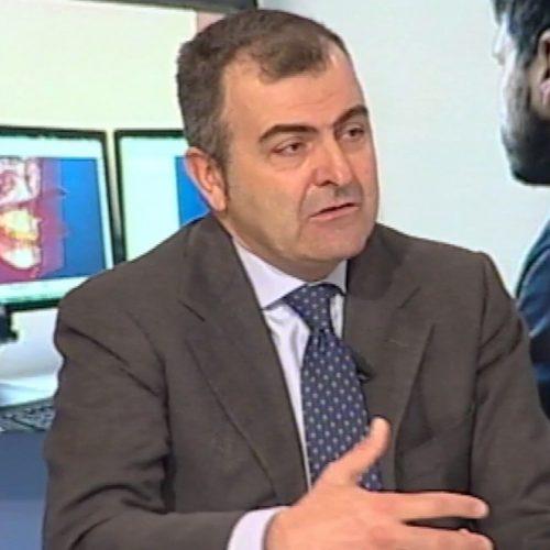 Tumore del cavo orale: il prof. Alberto Bianchi spiega perchè il fumo è la prima causa