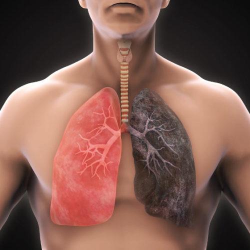 10 motivi per smettere o ridurre il danno da fumo