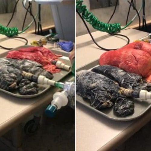 Ecig e cancro ai polmoni: rischio 50 mila volte inferiore rispetto alle bionde