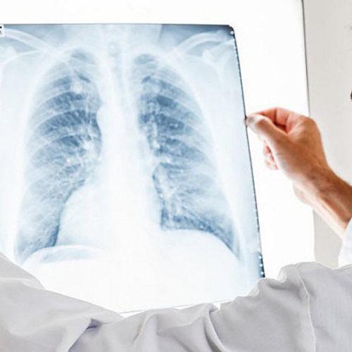 """Negli USA 94 casi di malattia ai polmoni tra giovani svapatori. Per Polosa: """"assenti dimostrazioni certe che colleghino questi casi alle e-cig"""""""